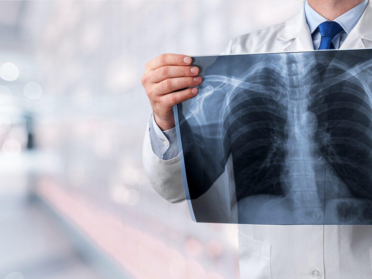 Michigan Asbestos Or Mesothelioma Lawyer The Sam Bernstein Law Firm